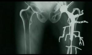 Extrait du film Metalosis Maligna de Floris Kaayk, relayé par les blogueurs Foscos Lucarelli et  Léopold Lambert